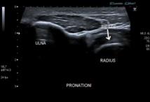 Comment infiltrer sous échoguidage l'enthèse distale du biceps brachial ?