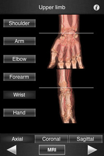 Monster Anatomy – Upper Limb