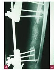 La technique de la membrane induite dans les reconstructions osseuses segmentaires