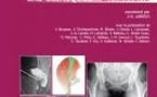 Résonance 3: la hanche