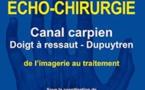 Echo-chirurgie: canal carpien, doigt à ressaut, Dupuytrens