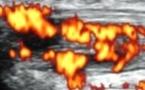 Apport du doppler couleur en ostéoarticulaire