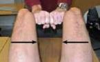 Entésopathie calcifiante du tendon du long adducteur