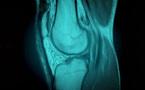 Débuter en écho-anatomie du genou