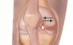 Recherche d'une subluxation rotulienne
