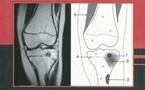 Pathologie articulaire et péri-articulaire des membres
