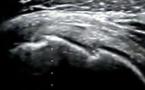Fracture non déplacée du trochin