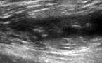 Hématome calcifié du long biceps fémoral