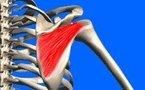 Rupture isolée du tendon infra-épineux