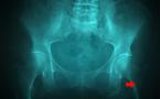 Débuter en écho-anatomie de hanche (hors nourrisson)