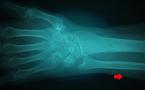 Débuter en écho-anatomie du poignet