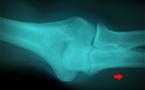 Débuter en écho-anatomie du coude