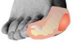 Articulation métatarso-phalangienne du gros orteil