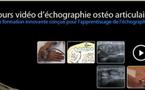 Cours vidéo d'échographie ostéo-articulaire