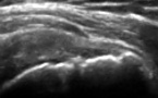 Rupture partielle du tendon supra-epineux