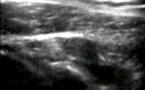 Kyste de l'échancrure spino-glénoïdienne