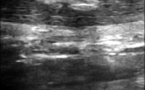 Calcifications du tendon calcanéen