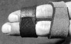 Eperon osseux de la MTP d'un doigt long