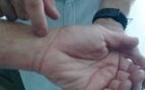 Thrombose d'une artère médiane persistante