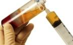 Injection de PRP sous échoguidage dans les traumatismes musculaires