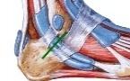 Ligament calcanéo-fibulaire
