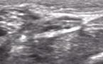 Echographie dynamique du nerf médian