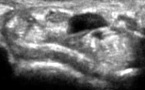 Muscle fléchisseur superficiel de l'index intracarpien