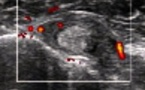 Ténosynovite et rupture partielle du tendon du long biceps
