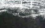 Dédoublement du ligament talo-fibulaire antérieur