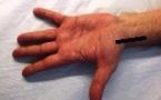 Rhizarthrose: infiltration sous écho-guidage